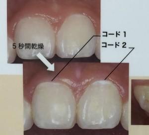 B8CD1172-559A-4FCC-990D-5C86AF73515D